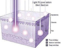 DPL Wavelengths Penetrate Deep Producing Collagen and Elastin For Smoother Younger Looking Skin.