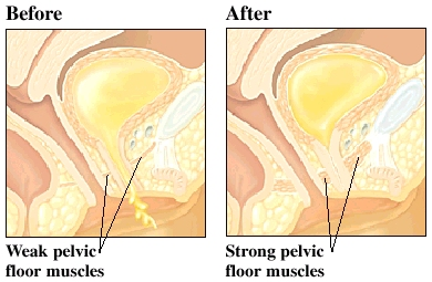A Strong Pelvic Floor Compared To A Weak Pelvic Floor That Allows Pee To  Escape.